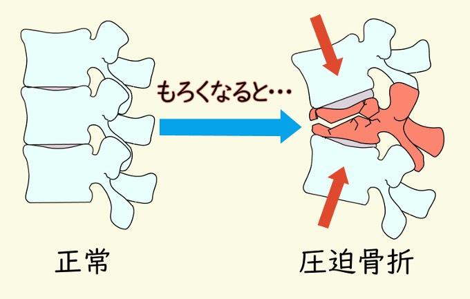 記事 気をつけたい種類の腰痛 1のアイキャッチ画像